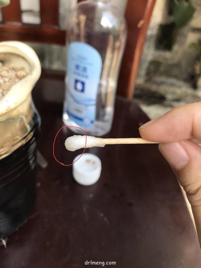 棉签+酒精处理蚧壳虫和枯叶示范图