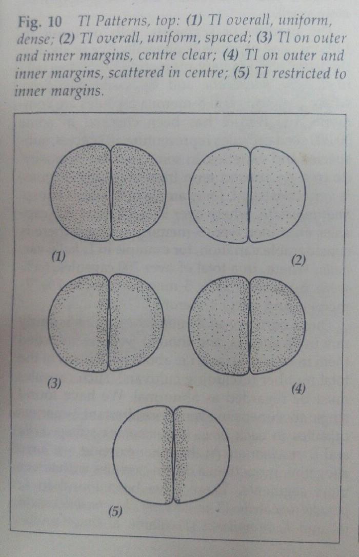 生石花单宁异细胞分布特征